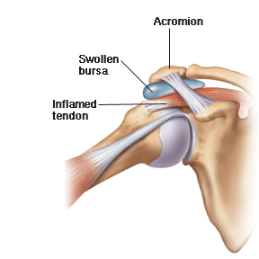 Shoulder_bursitis