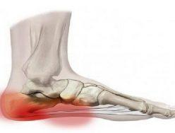 Preventative treatment and Rehabilitation for Plantar Fascia